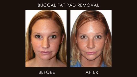 Buccal Fat Removal | Plastic surgery | Reduce face fat ...